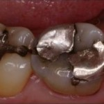 Same Day Dental Crowns - Before Treatment