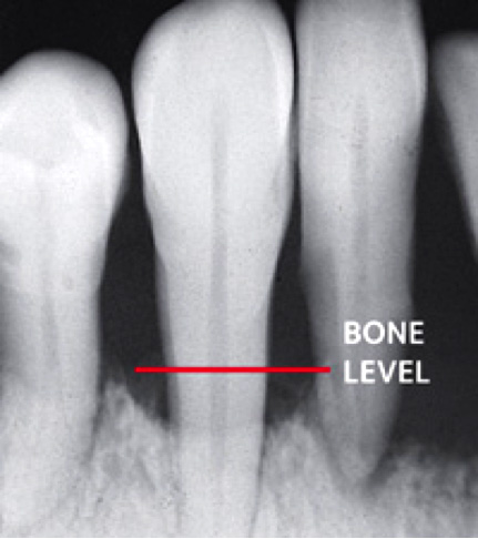 X-ray showing periodontal bone loss