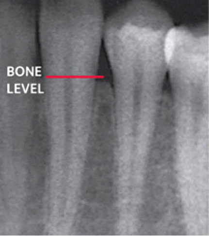 X-ray showing supporting bone