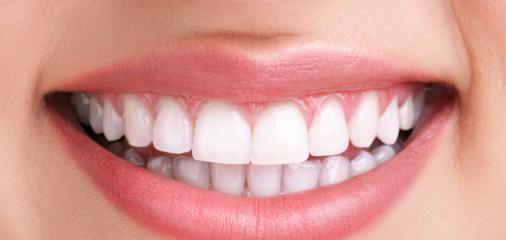 Teeth whitening at Angel Smile Dental Practice