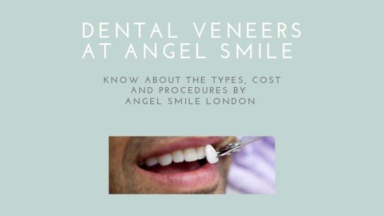 Dental-veneers-types-cost-and-procedures