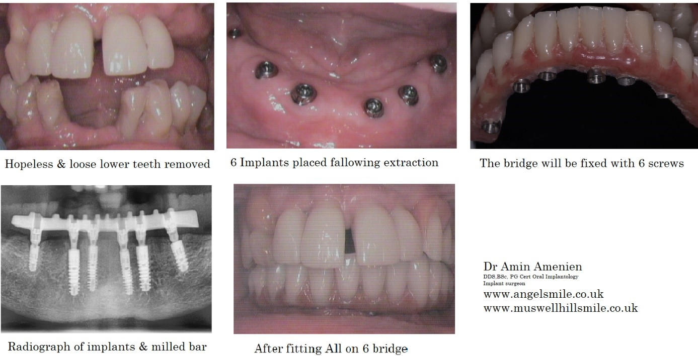 All-on-4-implants