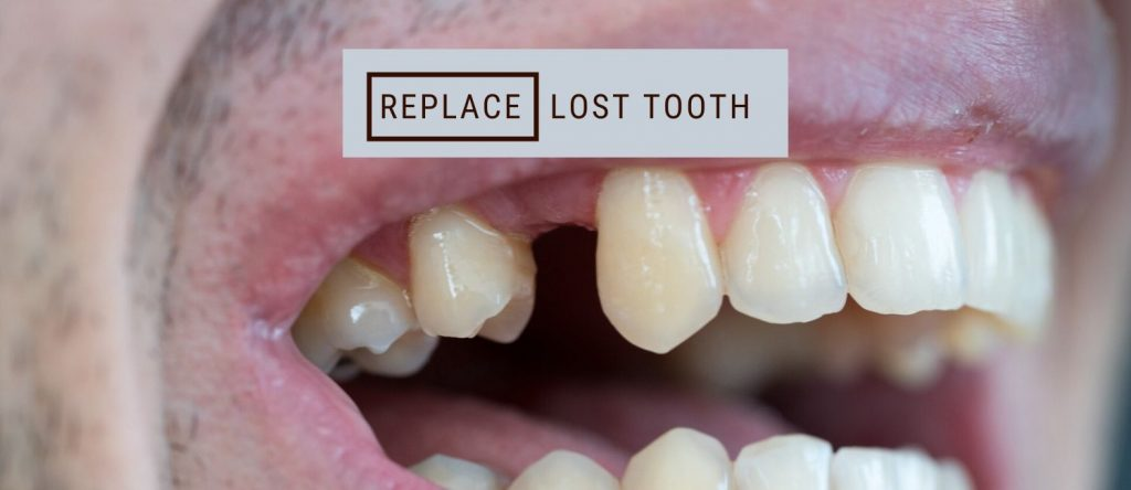 Replace Lost Teeth